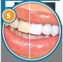 Отзывы об системе отбеливания зубов white light